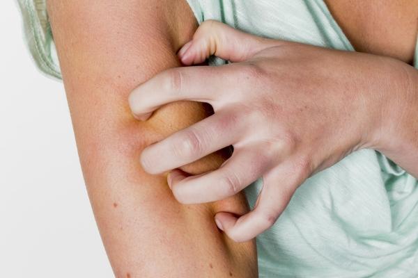 Hausmittel gegen Insektenstiche, Mückenstiche und Wespenstiche